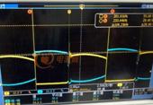 输出整流管波形异常