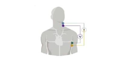 Multiphysics Simulation模拟软件 助力可靠结构和可穿戴系统